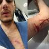 Almanya'da Türk gencine polis köpeği ile şiddet