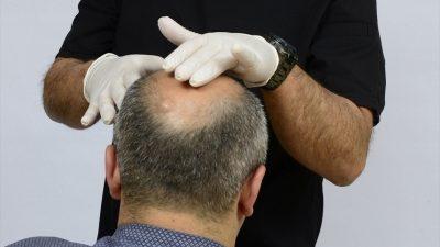 Türkiye'de saç ekim ekonomisi 1 milyar doları geçti