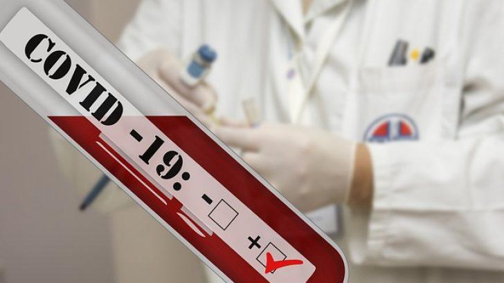 """Kovid-19 vakalarının tespiti için """"hızlı test"""" kullanımını önerdi"""